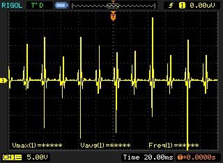 Inductive Spark Plug Wire Tachometer - Signal Transformation